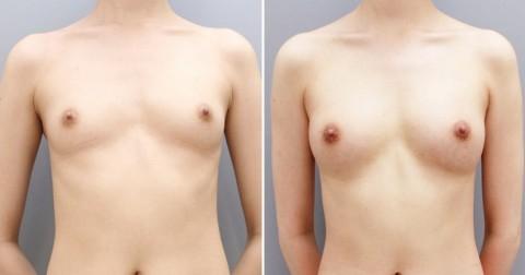 【施術前後】女性が豊胸したくなる気持ちが分からなくもない参考画像(23枚)・2枚目