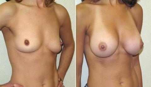 【施術前後】女性が豊胸したくなる気持ちが分からなくもない参考画像(23枚)・1枚目