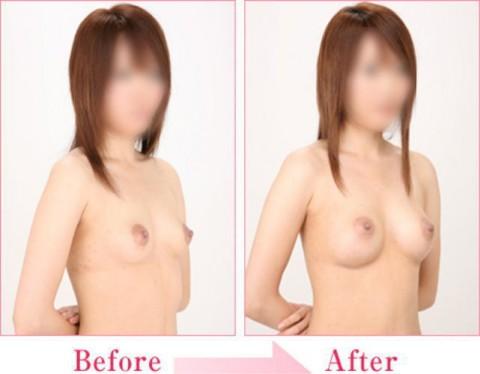 【施術前後】女性が豊胸したくなる気持ちが分からなくもない参考画像(23枚)・4枚目