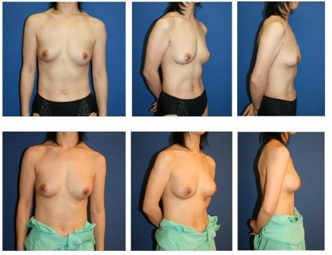 【施術前後】女性が豊胸したくなる気持ちが分からなくもない参考画像(23枚)・6枚目