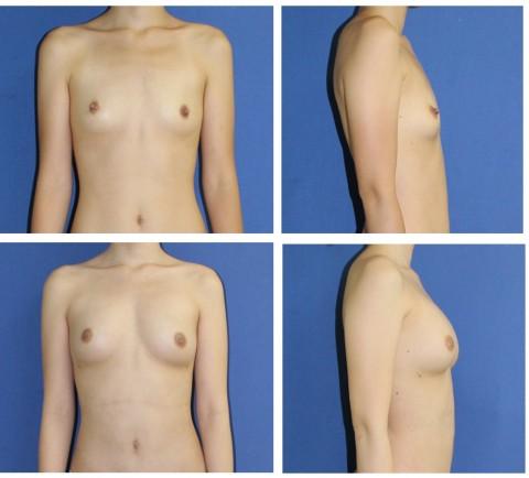 【施術前後】女性が豊胸したくなる気持ちが分からなくもない参考画像(23枚)・9枚目