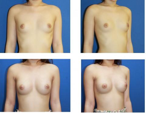 【施術前後】女性が豊胸したくなる気持ちが分からなくもない参考画像(23枚)・10枚目