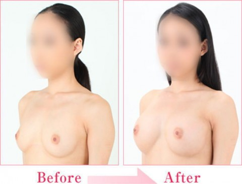 【施術前後】女性が豊胸したくなる気持ちが分からなくもない参考画像(23枚)・13枚目
