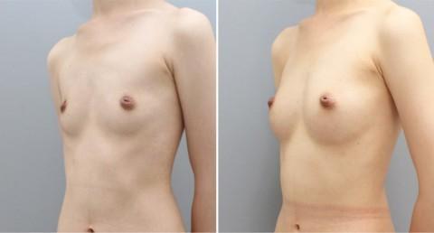 【施術前後】女性が豊胸したくなる気持ちが分からなくもない参考画像(23枚)・15枚目