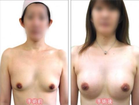 【施術前後】女性が豊胸したくなる気持ちが分からなくもない参考画像(23枚)・16枚目