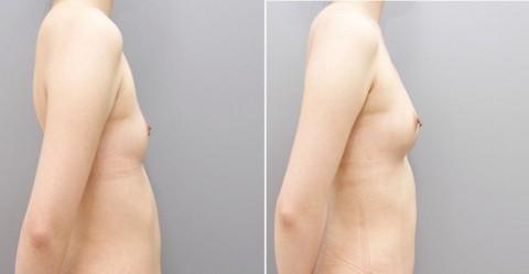 【施術前後】女性が豊胸したくなる気持ちが分からなくもない参考画像(23枚)・17枚目