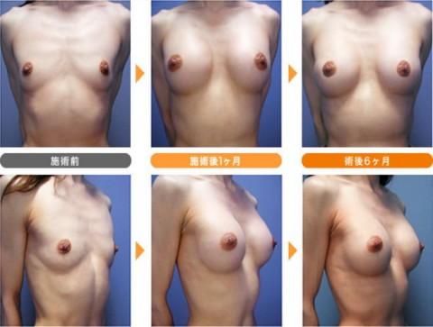 【施術前後】女性が豊胸したくなる気持ちが分からなくもない参考画像(23枚)・18枚目