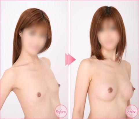 【施術前後】女性が豊胸したくなる気持ちが分からなくもない参考画像(23枚)・19枚目