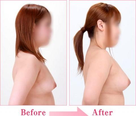 【施術前後】女性が豊胸したくなる気持ちが分からなくもない参考画像(23枚)・20枚目