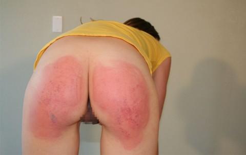 これ大丈夫なの?スパンキングされて痛々しいことになってるお尻の画像集(21枚)・15枚目