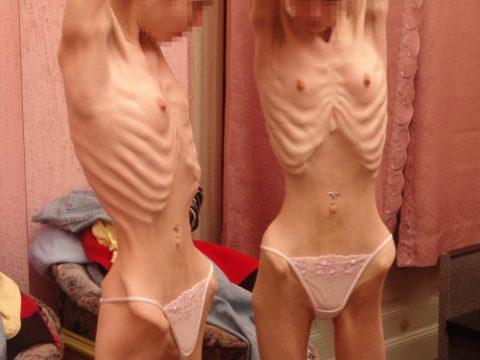 【閲覧注意】体重30㎏以下の女しか貼ってはいけない画像集(26枚)・1枚目