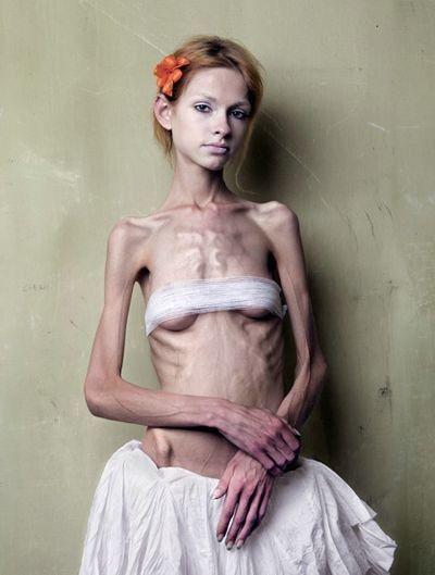 【閲覧注意】体重30㎏以下の女しか貼ってはいけない画像集(26枚)・23枚目
