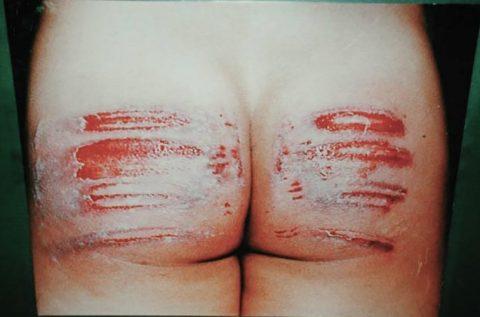【閲覧注意】血が苦手な人は見てはいけない調教エロ画像集(25枚)・11枚目