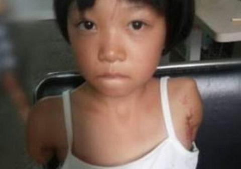 (超閲覧注意)台湾で拉致されて3年間性奴隷として飼われていた7才10代小娘、ダルマ状態で無事(?)保護される・・・・・(写真あり)