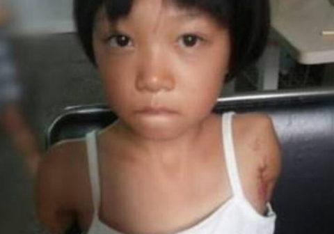 (※閲覧注意※)台湾で救出された男たちのペットとして飼われていた10代小娘 ←五体満足ではなかった・・・(写真あり)