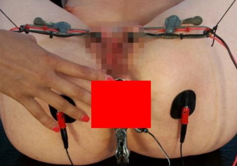 (※ヒエッッッ☆)ケツの穴ファックの次のステージに進んだ女性のケツの穴・・・ヤリすぎやろwwwwwwwwwwwwwwwwwwwwwwwwwwww(写真あり)
