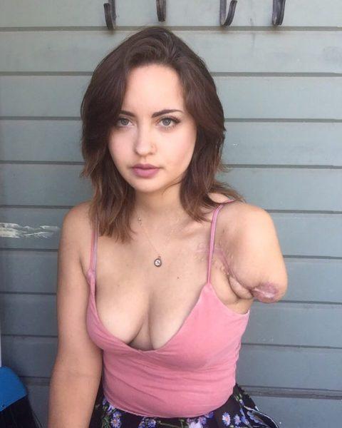妙にセクシーな片腕欠損女子のエロ画像集(34枚)・15枚目