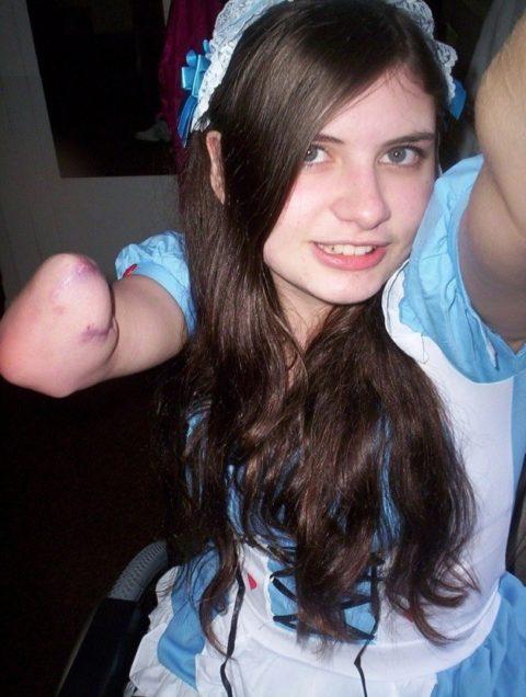 妙にセクシーな片腕欠損女子のエロ画像集(34枚)・20枚目