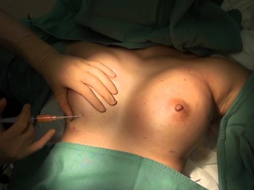 【不謹慎】全身麻酔の手術患者が執刀医にエロい事されてるんだが・・・(画像あり)