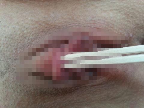 【卑猥】乳首やマンコを箸で摘まむ変態さん、その光景を晒すwwwwww(画像あり)・32枚目