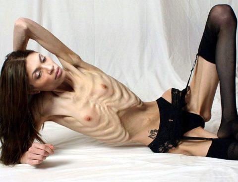 【閲覧注意】拒食症の女性がヌードになったら?⇒これで興奮できる奴おる?・10枚目