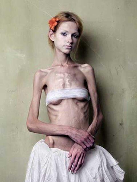 【閲覧注意】拒食症の女性がヌードになったら?⇒これで興奮できる奴おる?・22枚目