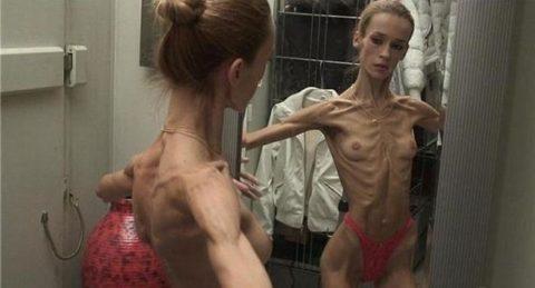 【閲覧注意】拒食症の女性がヌードになったら?⇒これで興奮できる奴おる?・23枚目
