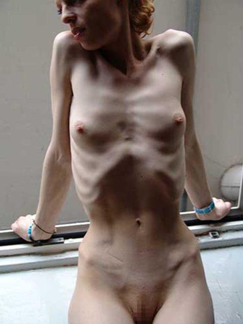 【閲覧注意】拒食症の女性がヌードになったら?⇒これで興奮できる奴おる?・34枚目
