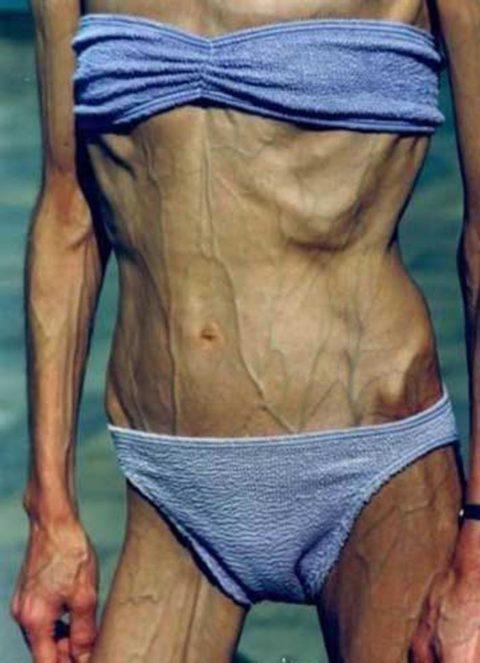 【閲覧注意】拒食症の女性がヌードになったら?⇒これで興奮できる奴おる?・36枚目
