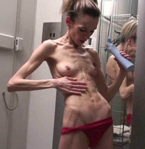 【閲覧注意】拒食症の女性がヌードになったら?⇒これで興奮できる奴おる?・38枚目