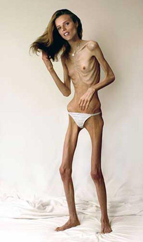 【閲覧注意】拒食症の女性がヌードになったら?⇒これで興奮できる奴おる?・4枚目