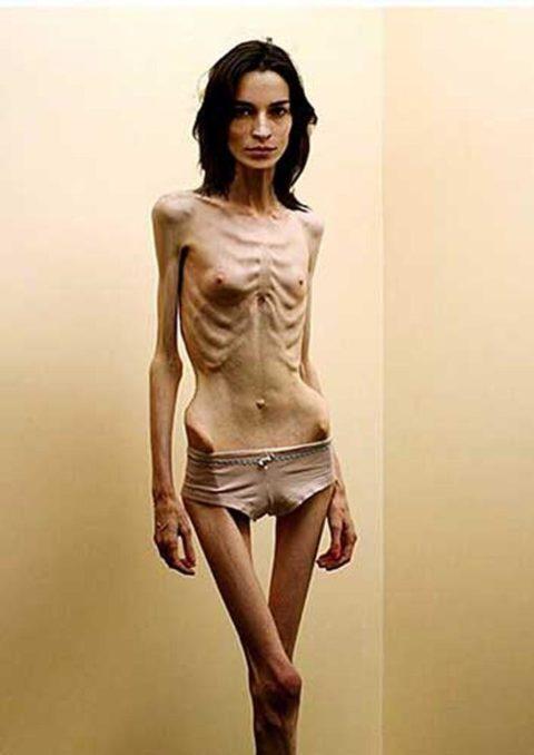 【閲覧注意】拒食症の女性がヌードになったら?⇒これで興奮できる奴おる?・8枚目