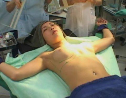 【エロ画像】手術中の女さん、医者にエロい事される…この光景は草wwwwww・5枚目